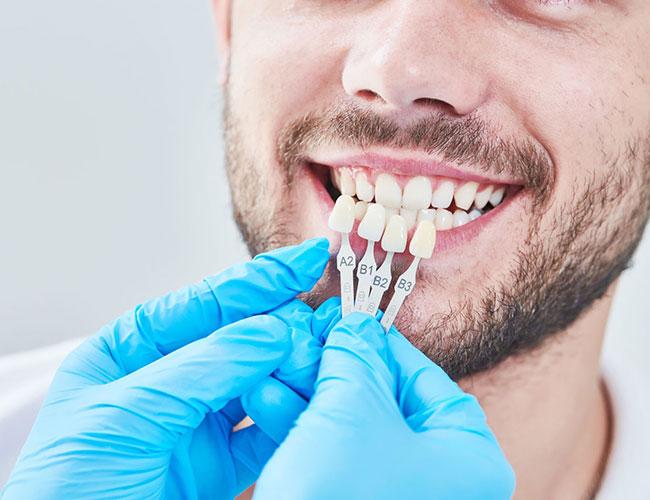 Cosmetic Gum Problem