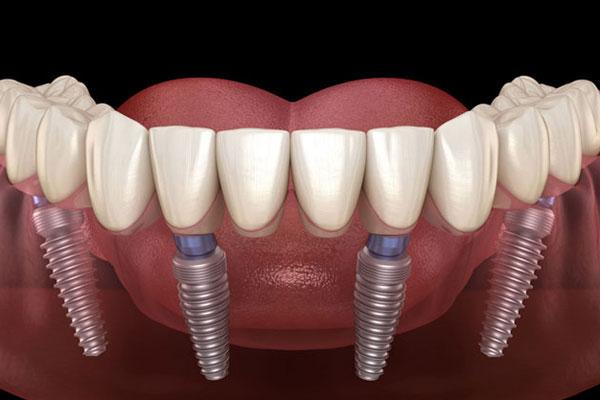 How Denture Made