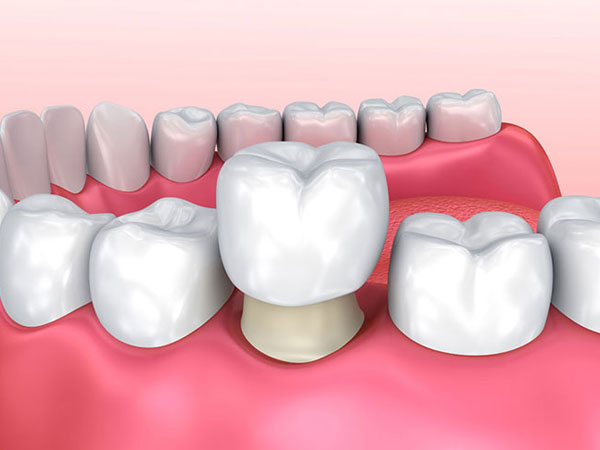 teeth whites
