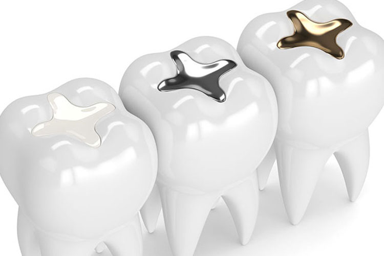 Tooth-Colored Fillings Be Used